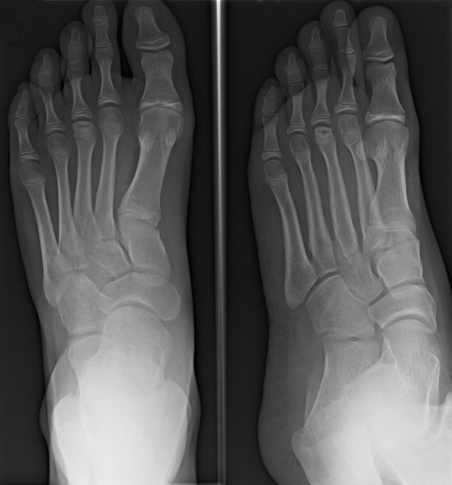 AVN of the third metatarsal head